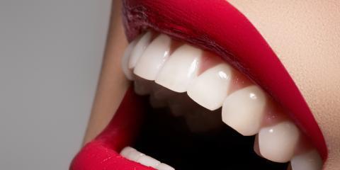 5 Amazing Ways Teeth Whitening Can Transform Smiles, Jacksonville, Arkansas
