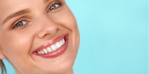 FAQ About TeethWhitening, Waterloo, Illinois