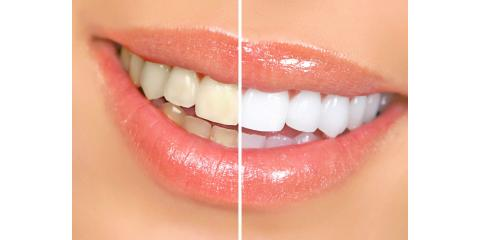 Learn about Teeth Whitening Options, Montgomery, Ohio