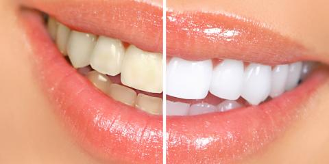 Teeth Whitening 101: Tips to Ensure Your Early Success, Riverside, Ohio
