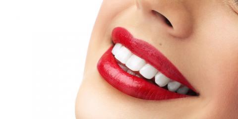Kenton Dental Care Offers Top 4 Teeth Whitening Tips, Kenton, Ohio