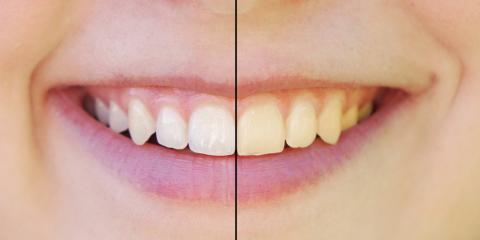 3 Common Misconceptions About Teeth Whitening, Beatrice, Nebraska