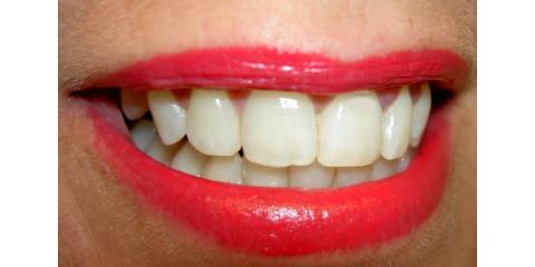 Avoiding Tooth Replacement: Why Nail Biting is Terrible For Teeth, Monroe, New York