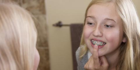 What You Need to Know About Teeth Straightening, Jasper, Georgia