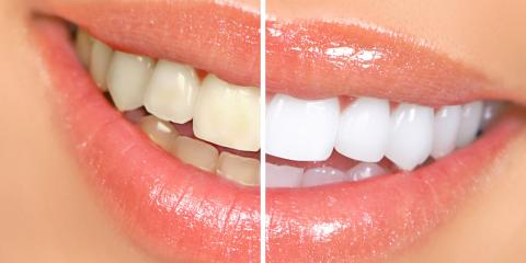 When You Need More Than a Dental Cleaning, Bleaching is Your Best Option, Florence, Kentucky