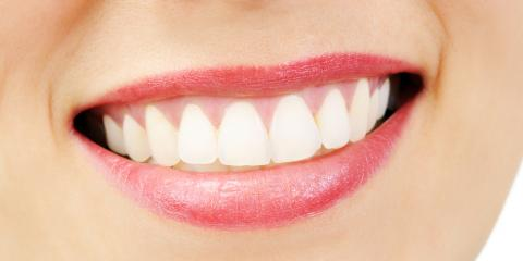 Should You Choose DIY or Professional Teeth Whitening? How They Compare, High Point, North Carolina
