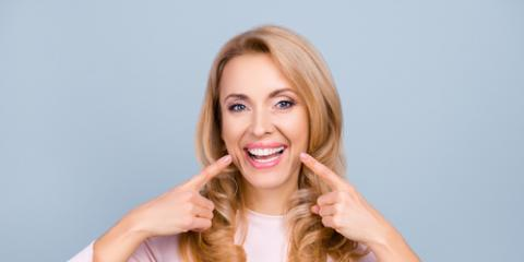 What's the Difference Between Professional & DIY Teeth Whitening?, Chillicothe, Ohio