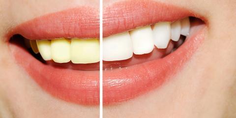 2017 Smile Makeover: 5 Easy Teeth Whitening Tips, Lincoln, Nebraska