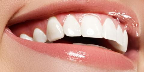 9 Things Dentists Wish You Knew About Teeth Whitening, North Branch, Minnesota