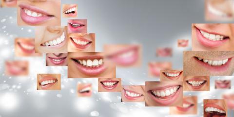 Valentine's Zoom Teeth Whitening Special, Jacksonville, Arkansas