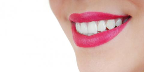 Top Milford Dentist Shares Teeth Whitening Facts, Miami, Ohio
