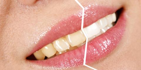 Can Teeth Whitening Damage Enamel? Crittenden Dentists Weigh In , Crittenden, Kentucky