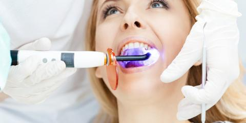 Tips for Relieving Possible Tooth Sensitivity After Teeth Whitening, Perry, Georgia