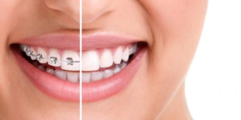 Braces or Invisalign®: Which Is the Better Option?, Thomasville, North Carolina
