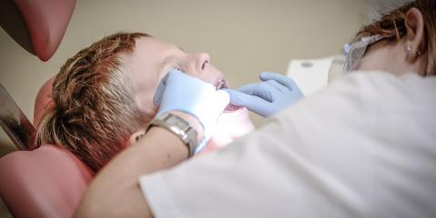 3 Signs You Might Need a Tooth Extraction , Anchorage, Alaska