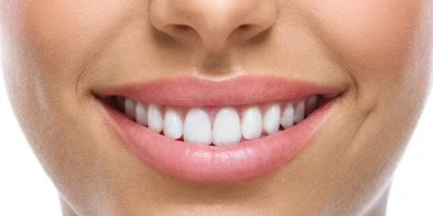 How Professional Teeth Whitening Works & Results You Can Expect, Dumas, Texas