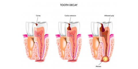 3 Frequently Asked Questions Concerning Cavities, Anchorage, Alaska
