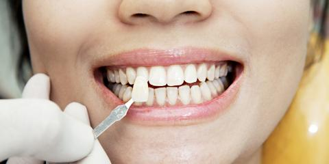 Why Cosmetic Dentistry Is Great for Teens, Too, Anchorage, Alaska
