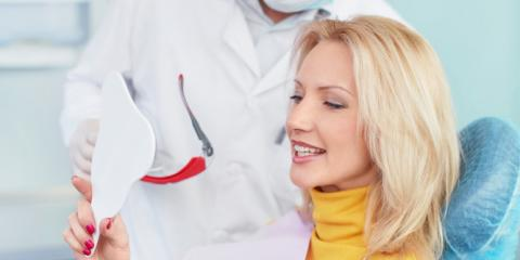 Top Teeth Whitening FAQs, Superior, Wisconsin
