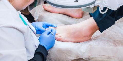 5 Common Misconceptions People Have About Ingrown Nails, Torrington, Connecticut