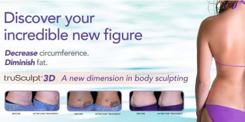 5 Reasons to Try truSculpt® 3D, Kailua, Hawaii