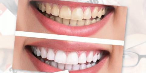 Ripon's Hillside Dental Associates Offers 4 Types of Cosmetic Dentistry , Ripon, Wisconsin