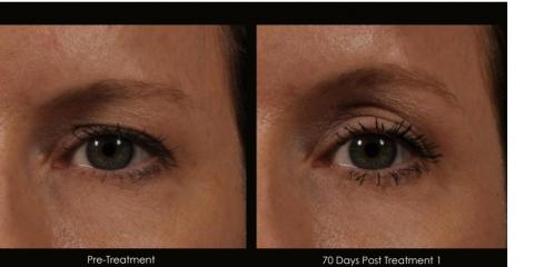 How to tighten your brow's skin without Surgery? Ultherapy that's how! Before & after Pictures, Lake Worth, Florida