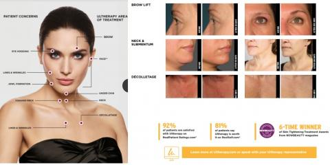 Lift the skin on the neck, chin, and brow & improve lines and wrinkles on the décolletage with ULTHERAPY!. FAQ, Lake Worth, Florida