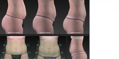 Goodbye belly fat with UltraSlim Light Assisted Body Contouring and Cellulite Treatment!, Lake Worth, Florida