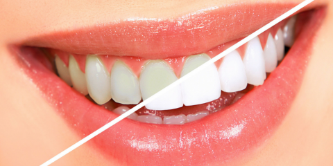 A Better You With a Whiter Smile From Dental Clinic of Onalaska , Onalaska, Wisconsin