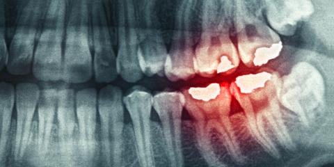 Dentist's Top 4 Care Tips for Cracked or Chipped Teeth, Vanceburg, Kentucky