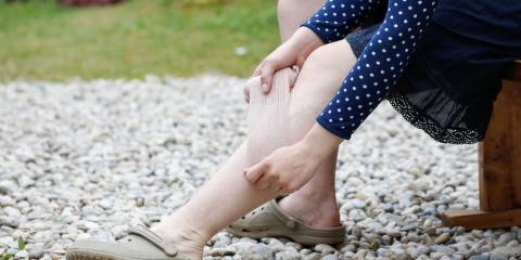 How Common Are Spider Veins on Legs?, Manhattan, New York