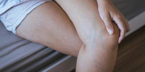 3 Reasons Women Are More Likely to Develop Varicose Veins, Manhattan, New York