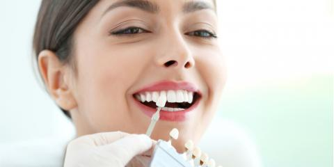 What Are Dental Veneers & How Do They Work?, Koolaupoko, Hawaii