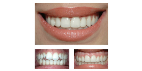 Are Veneers Right For You?, Middlebury, Connecticut