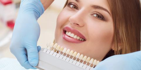 How Do Dental Crowns & Veneers Differ?, Hamilton, Ohio