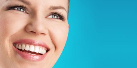What Are the Proper Ways to Care for Veneers?, Windsor, Wisconsin