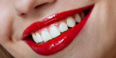 Maintain a Glistening Smile With These 3 Veneer Care Tips, Stuttgart, Arkansas