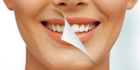 What Are Dental Veneers? A Lexington Dentist Explains, Lexington-Fayette Central, Kentucky