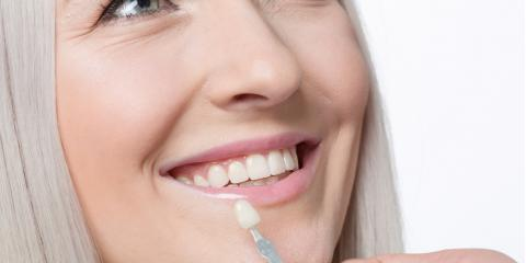 3 Things You Probably Didn't Know About Veneers, Covington, Kentucky