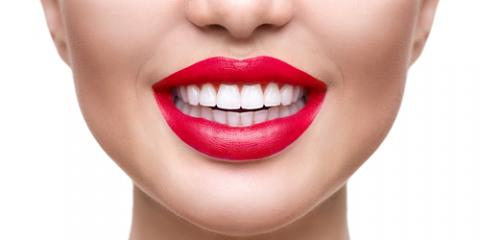 3 Ways to Take Care of Your New Dental Veneers, Monroe, New York