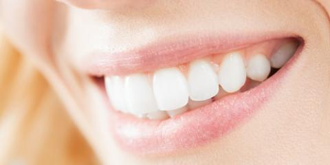 Veneers Vs. Bonding: Which Is Right for You? , Anchorage, Alaska