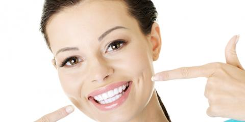 Why Dental Veneers May Be Perfect for You, Columbia, Missouri
