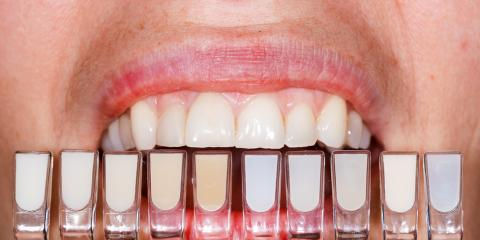 What Are Dental Veneers? , Superior, Nebraska