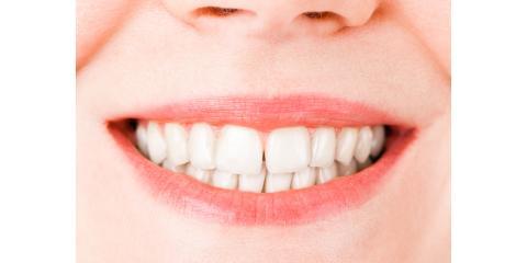 What Are Dental Veneers?, Manhattan, New York