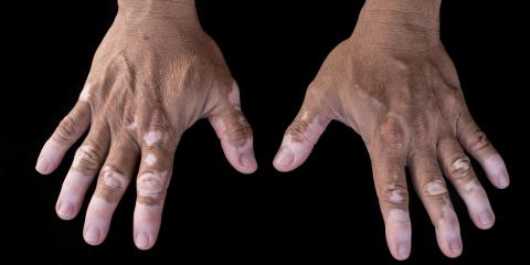 Vitiligo Explained & Recommended Skin Treatments, Lincoln, Nebraska