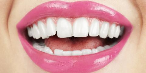 How to Care for Dental Veneers: 5 Tips, Ewa, Hawaii