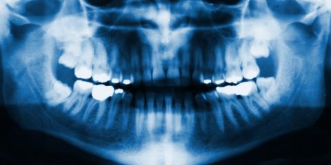 5 Conditions an Oral Surgeon Treats, Warner Robins, Georgia