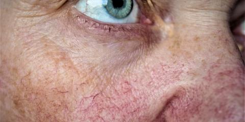 A Guide to Rosacea Skin Conditions, Seattle, Washington