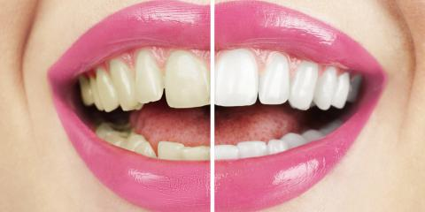 Waterford's Cosmetic Dentist Shares 3 Causes of Tooth Discoloration, Waterford, Connecticut